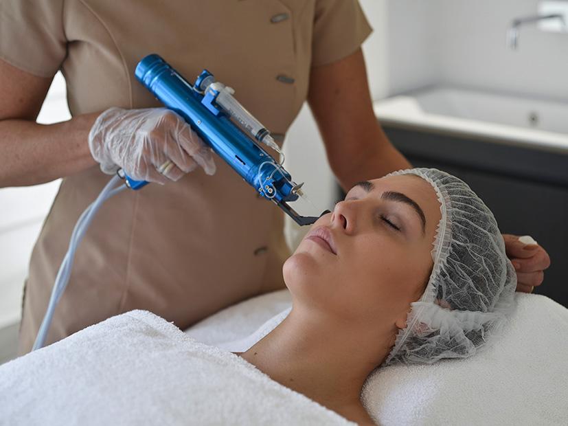 Mesotherapie: botox alternatief